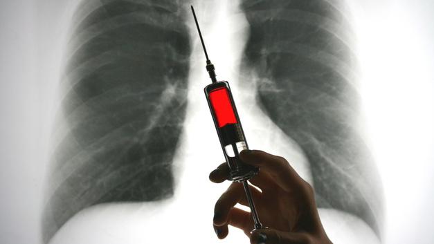 В США вспышка гепатита A: Туристов просят избегать штата Огайо