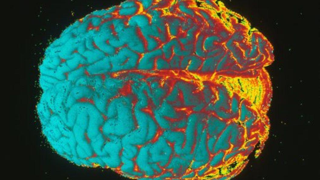 Ученые установили области преимущественной активности женского мозга