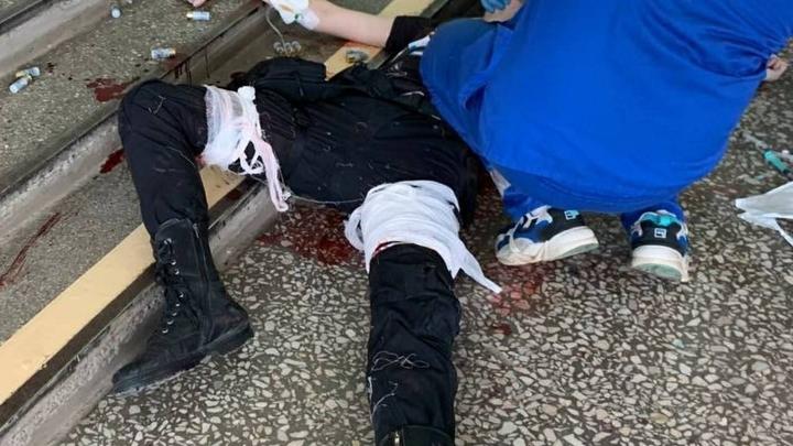 18-летнему студенту, устроившему бойню в университете Перми, ампутировали ногу