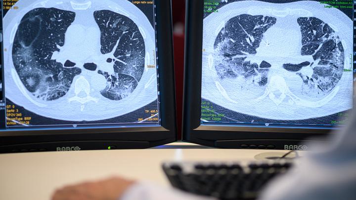 Коронавирус может спровоцировать опухоли: Врачи заявили об открытии