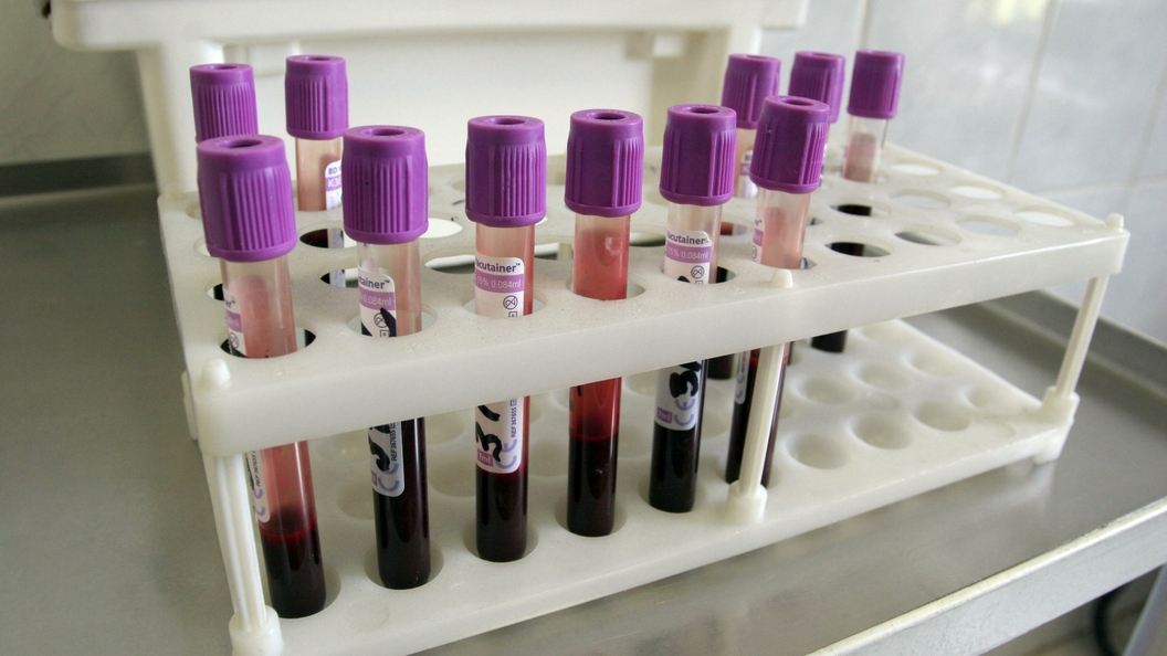 Ученые: Каждый второй в России может передать ребенку опасное заболевание