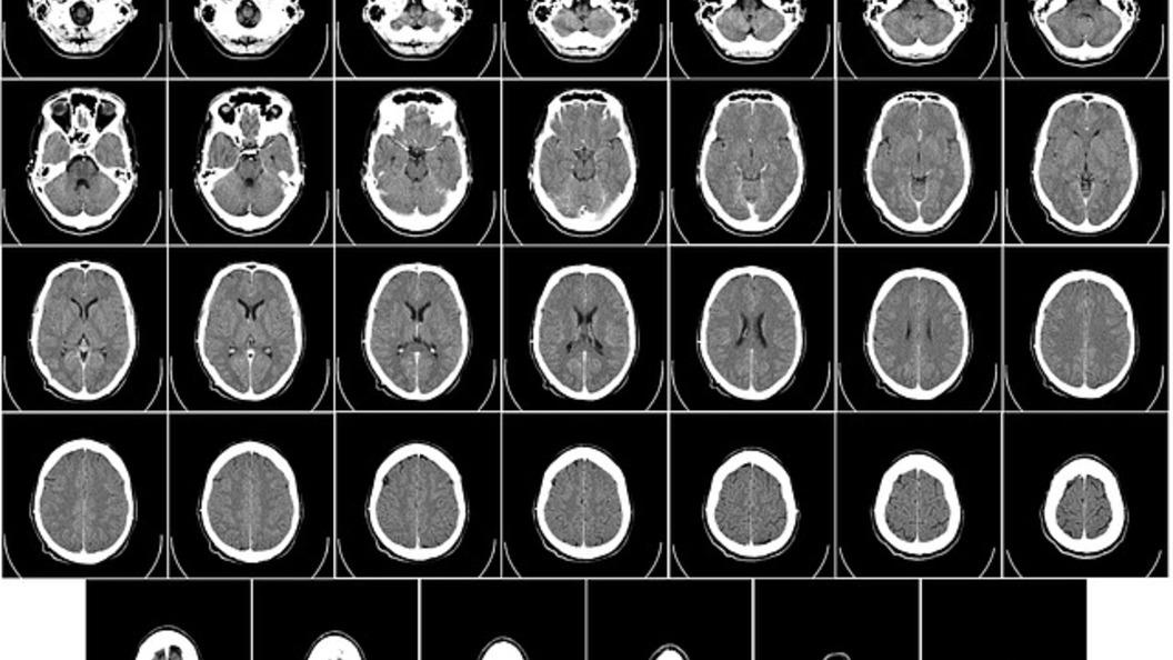 Ученые научились разговаривать с полностью парализованными людьми