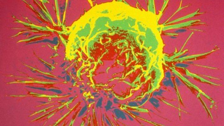 Учёные раскрыли секрет неизлечимости рака: Виноваты эволюция и мутации