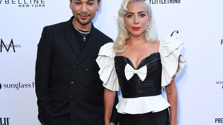 Леди Гага - одним жестом о самочувствии после падения со сцены