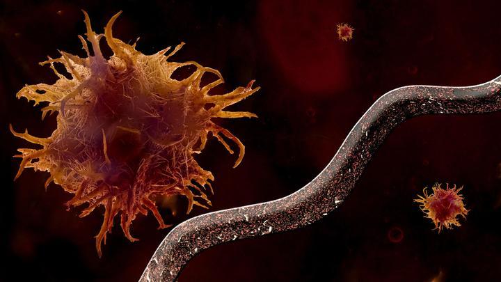 В двух из десяти случаев: Американские учёные назвали одну из главных причин развития рака