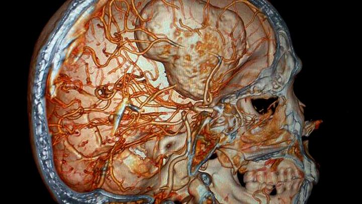 Ученые изобрели имплантат, на 30% улучшающий память
