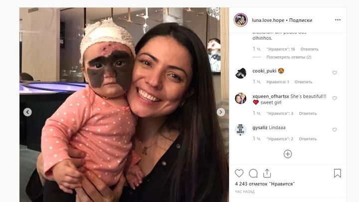 Лобик чистый после первой же процедуры: Чудный результат русского лечения девочки в маске Бэтмена показала мама
