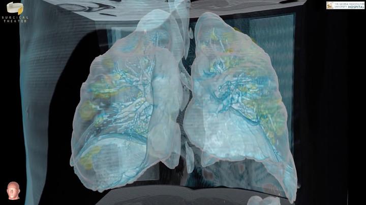 В лёгких у бессимптомных пациентов COVID-19 обнаружили эффект матового стекла