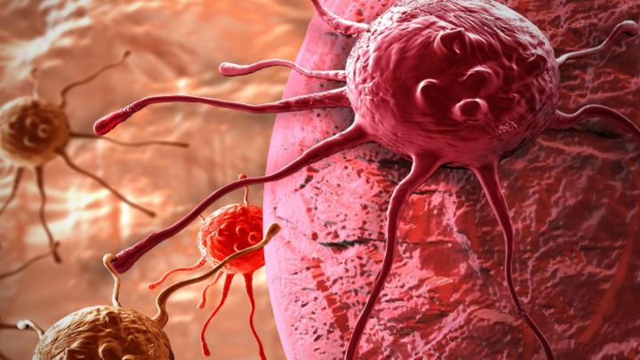 Ученые разработали клетки-терминаторы для уничтожения опухолей мозга