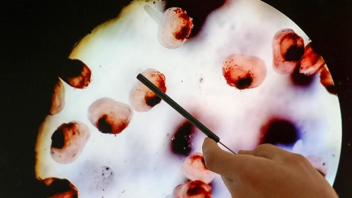 Поймать рак на ранней стадии: Онколог назвал оптимальные сроки проверок