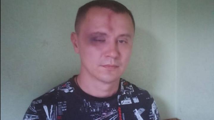 «Повалили на асфальт и пинали ногами»: Выходцы из Средней Азии избили дружинника в Новосибирске
