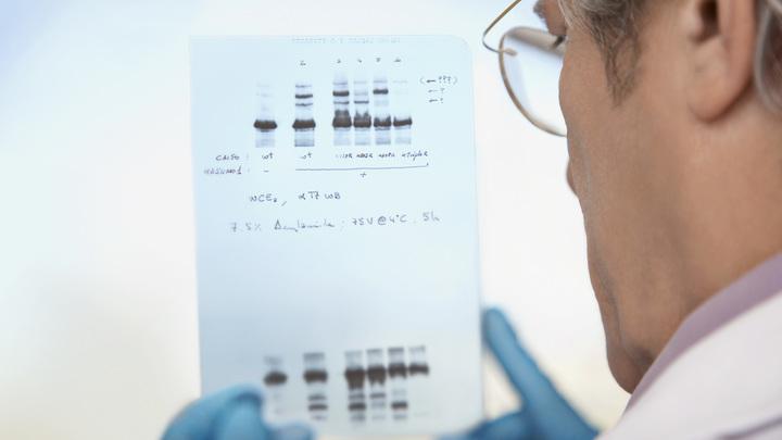 Ученые нашли способ продлить молодость человека, изменив его привычки