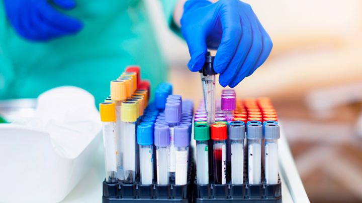 В России эпидемия: Кто и как распространяет ВИЧ
