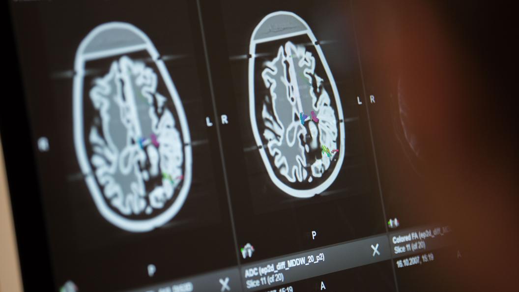 Русские ученые создали «сомневающуюся» нейросеть