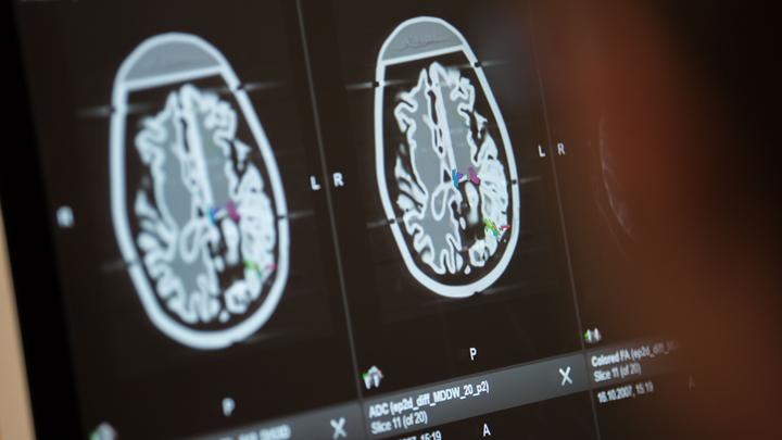 Русские ученые научили нейросеть сомневаться, как человек