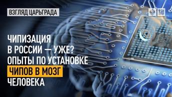 Чипизация в России – уже? Опыты по установке чипов в мозг человека