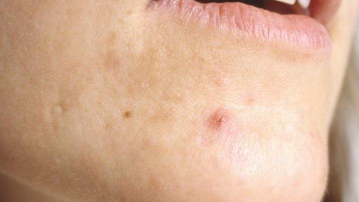Можно принять за обычный прыщ: Онкологи назвали первый признак рака кожи