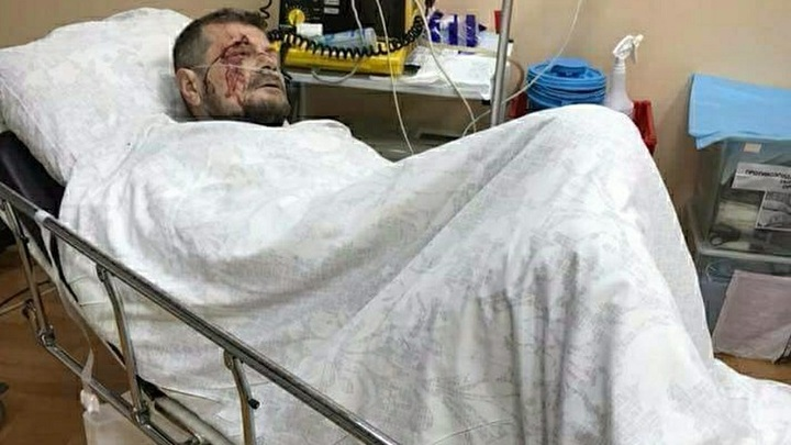 Советник главы МВД Украины увидел чеченский след в покушении на Мосийчука