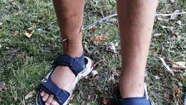 После детских игр во воре 10-летний мальчик загремел в больницу Могилевской области