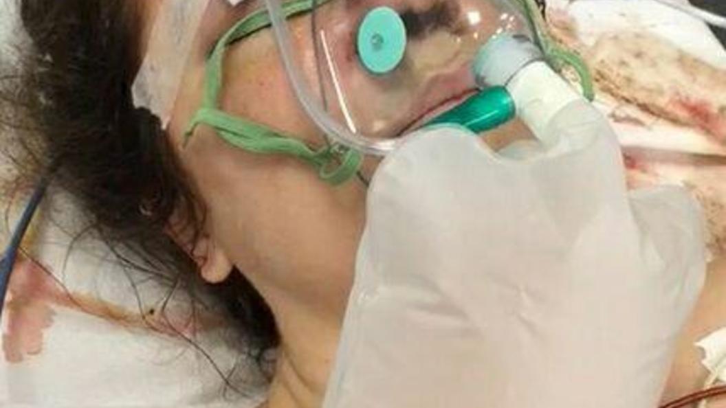 В Париже девушку-режиссера из России избили до потери зрения - фото