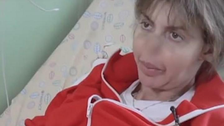 Бывшая жена Аршавина показала изуродованное тяжелой болезнью лицо