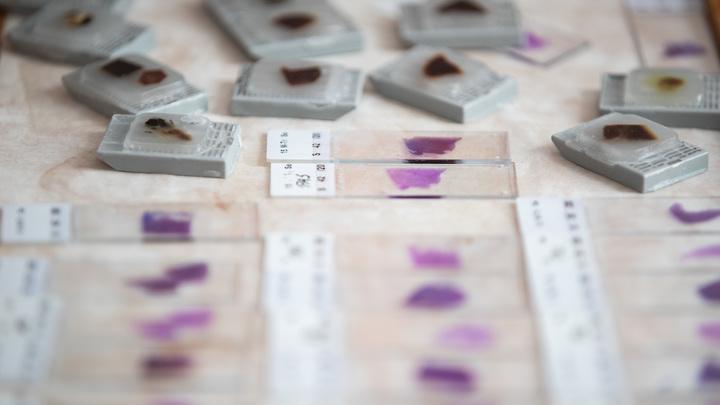 Коронавирус увидят по коже: Российские учёные сообщили о простом способе диагностики