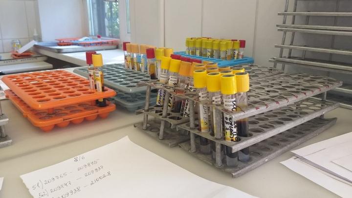 Тесты на коронавирус будут делать в Зауралье за 48 часов