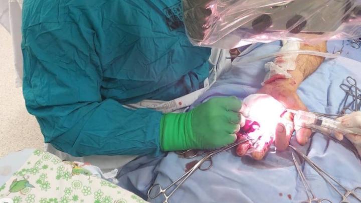 Краснодарские хирурги спасли мужчине кисть руки, поврежденную пилой