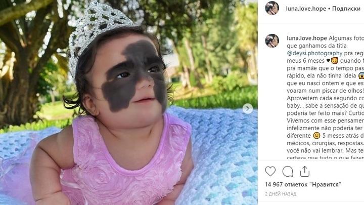 Брат краснодарского хирурга объяснил, почему в США девочке с маской Бэтмена не смогли помочь, а в России - запросто