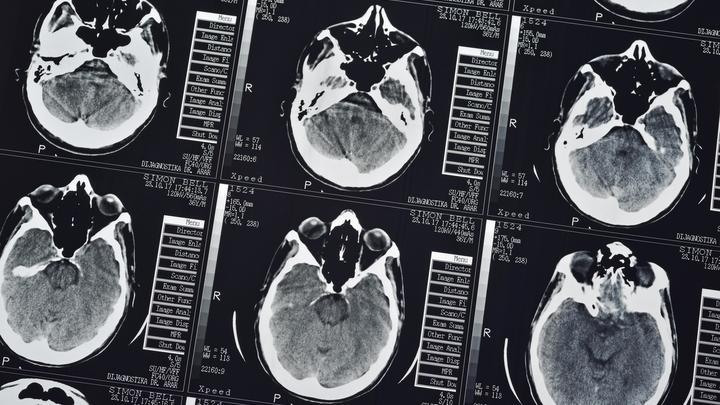 Возникает сразу в четвёртой степени: Онколог оценил риски заболевания раком мозга